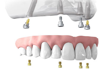 Dental Implants Fixed Dentures
