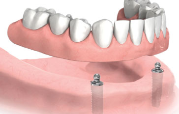 Denture Implants Brooches System