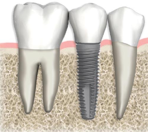 Dental Implants In Miami, FL