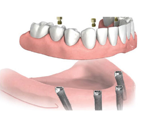 Dental Implants for Fixed Dentures Miami, FL