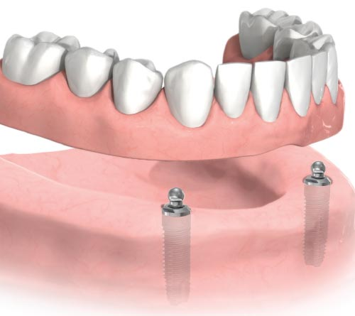 Denture Implants Brooches System Miami, FL