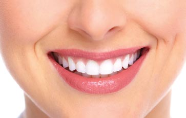 Tooth Whitening In Miami, FL